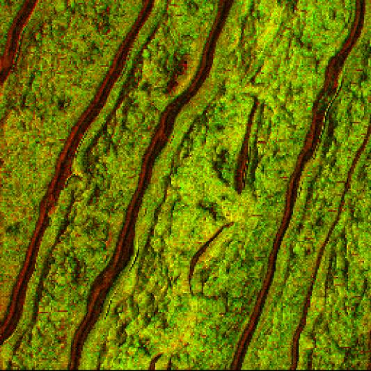 Visualization of Drug (Dexamethasone) in Human Skin Sample