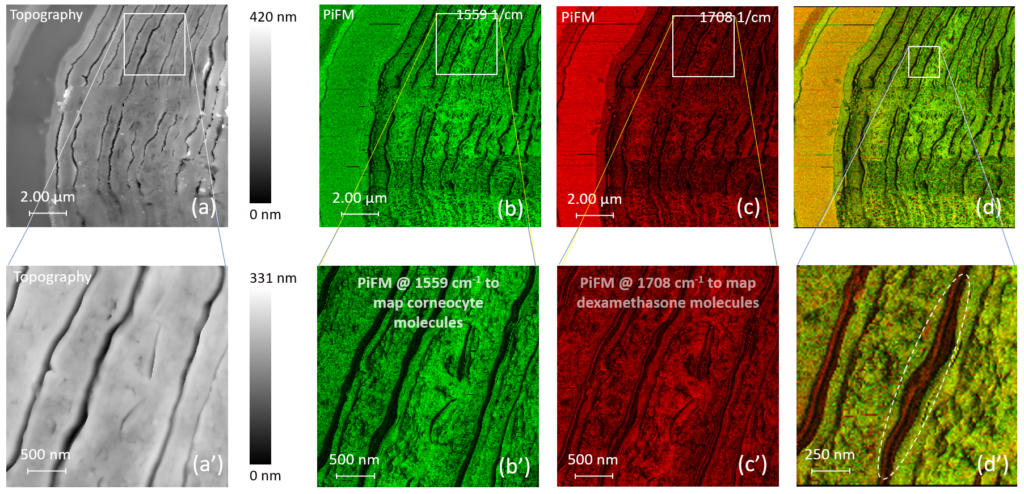 Detailed view on the stratum corneum of fixed human skin: (a) AFM topography visualizing the structure of corneocytes; (b) chemical PiFM contrast related to amides probed at 1558 cm−1; (c) PiFM contrast related to dexamethasone at 1708 cm−1; (d) two PiFM images combined to map chemical components.